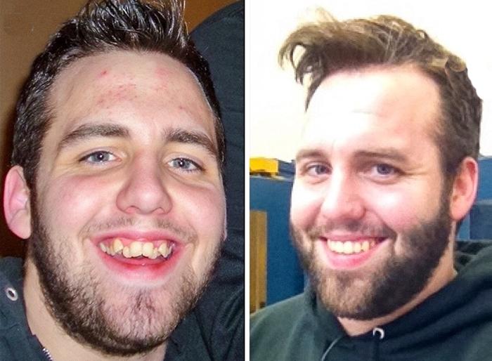 cambiar sonrisa jacob