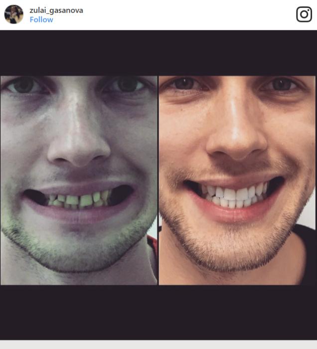 cambiar sonrisas alexander