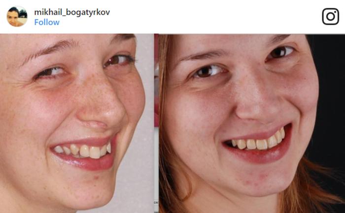 cambiar sonrisas catherine