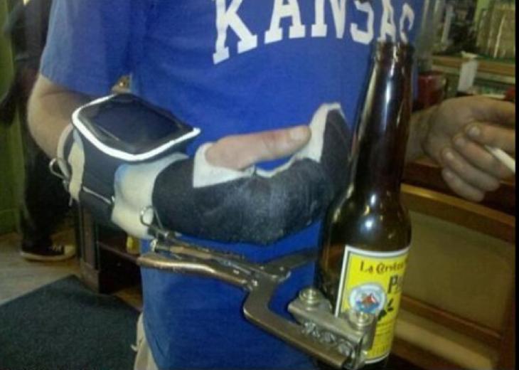 Pinzas para sujetar cerveza protesis