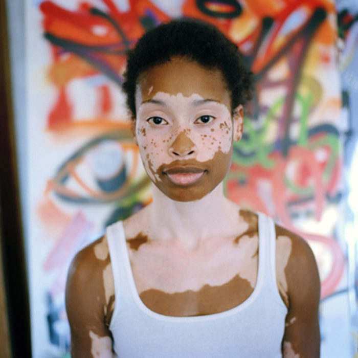 Mujer hermosa vitiligo