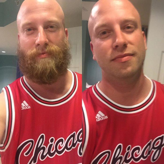 comparativa de hombre con o sin barba