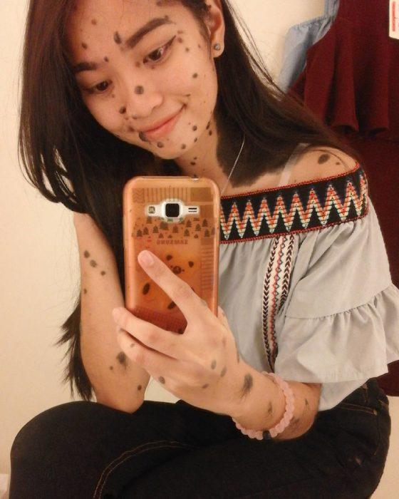 Evita celular foto verrugas