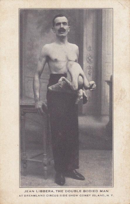 El hombre con dos cuerpos