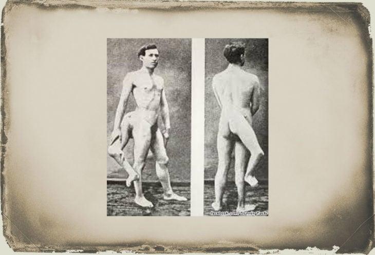 El hombre con tres piernas