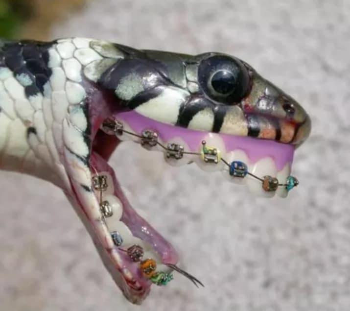 serpiente con braquets