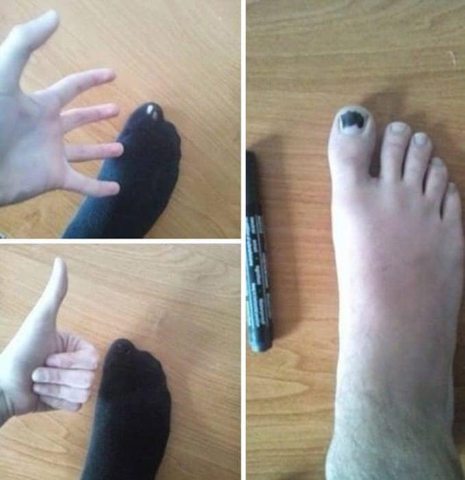 uña negra para calcetín roto
