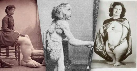 Cover fenómenos de circo que fueron torturados