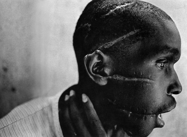 Cicatrices niño en Ruanda