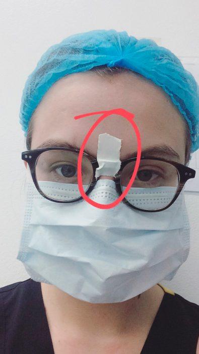 se pegó los lentes con cinta