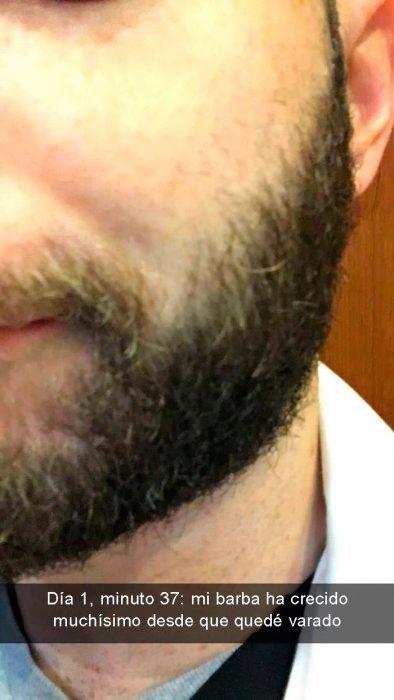 atorado en elevador barba