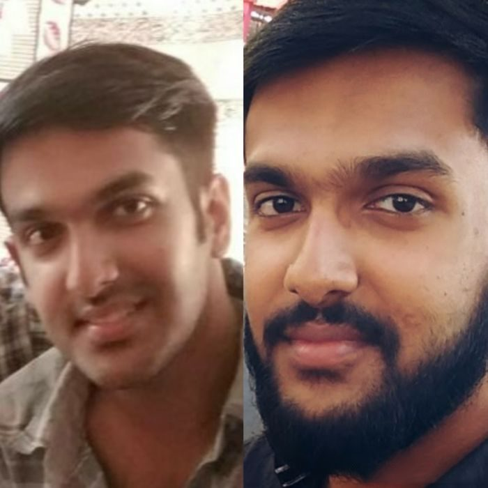 hombre sin barba antes y después