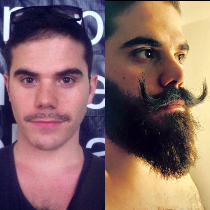 barba con bigotes raros
