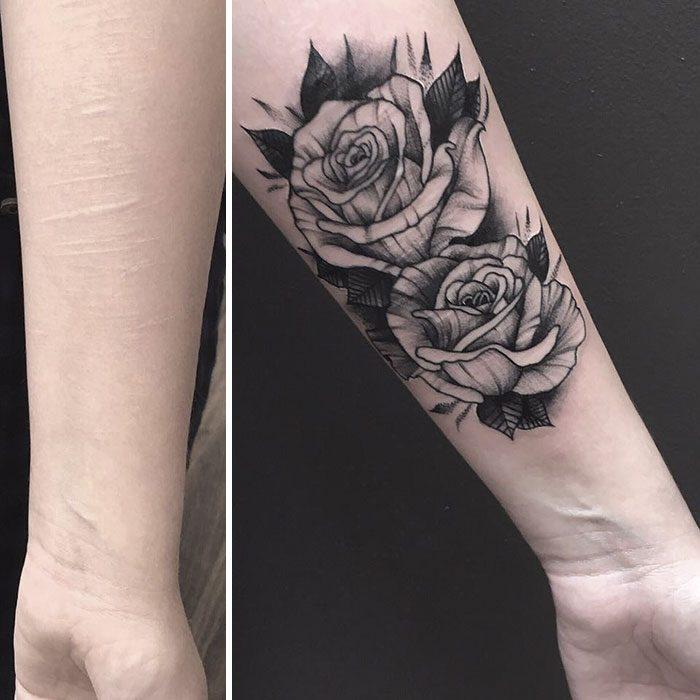 brazo cicatrices