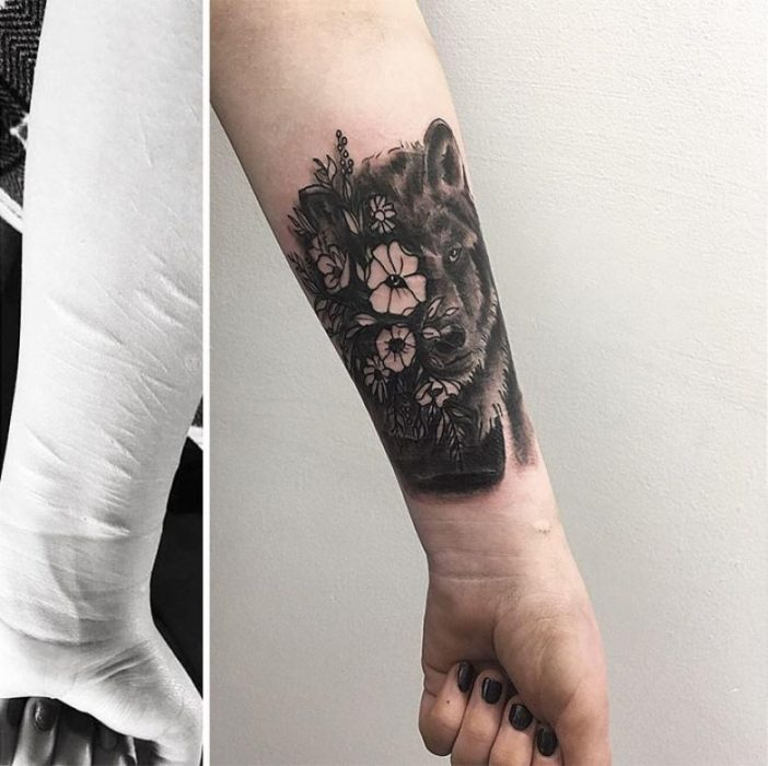 cicatriz brazo
