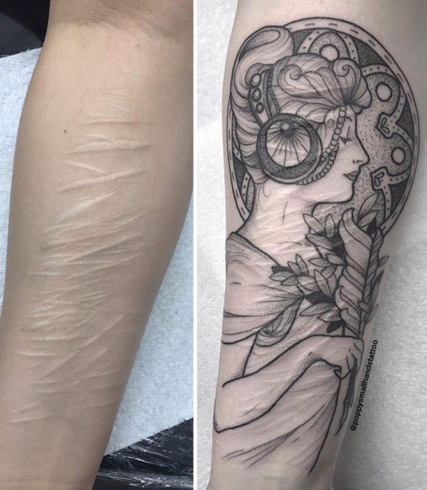brazo cocatríz