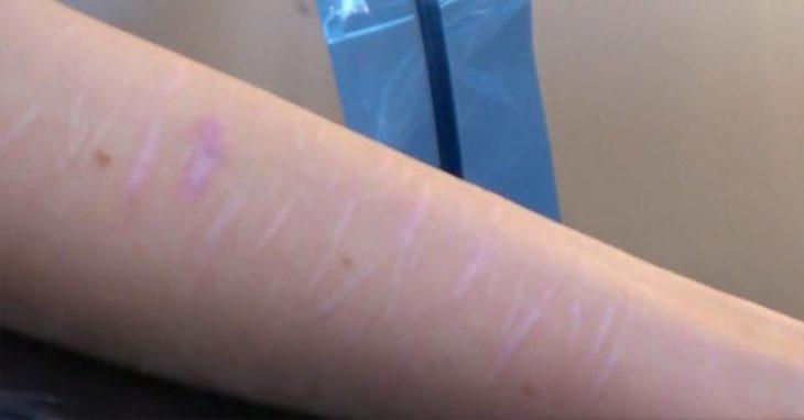 cicatrices brazo