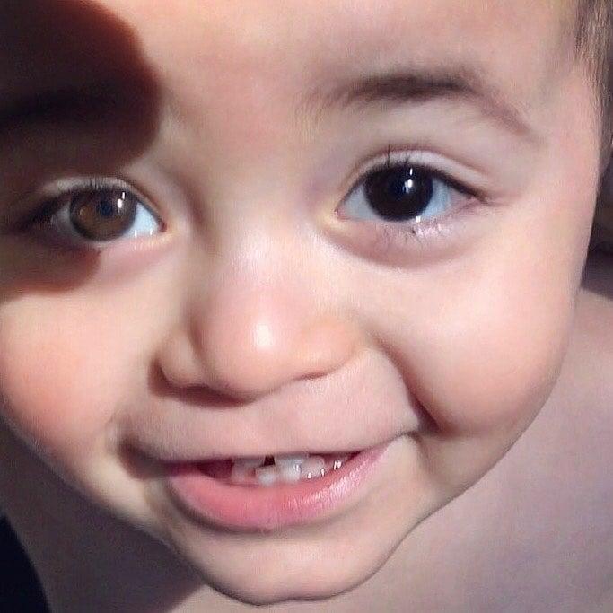 bebé ojos de ambos colores