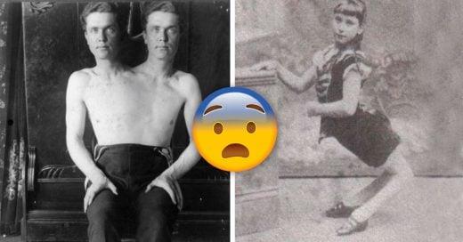 Cover Perturbadores personajes de circo que existieron en la vida real