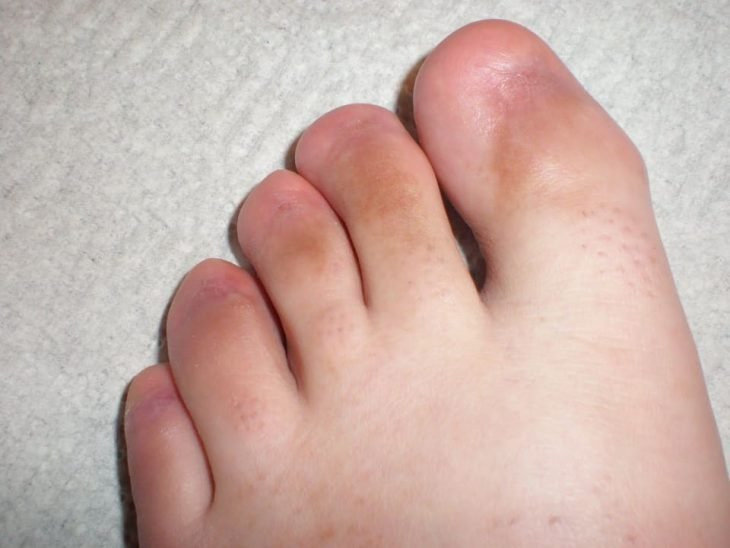 pies asquerosos sin uñas