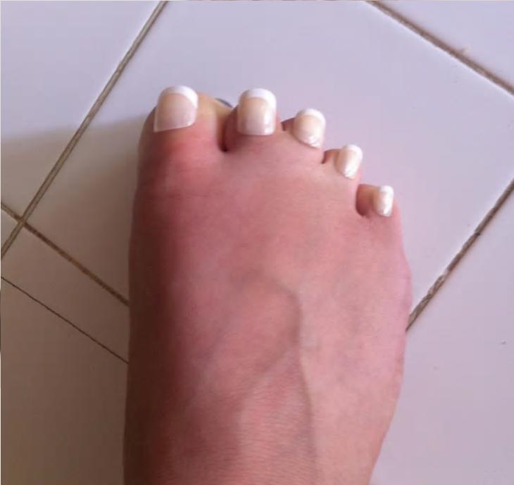 pies uñas raras