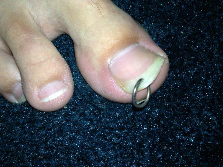 pies asquerosos