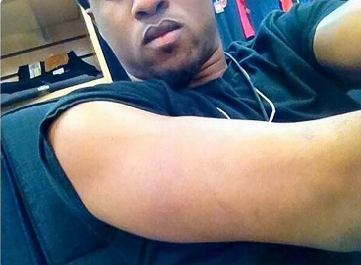 hombre mostrando su brazo