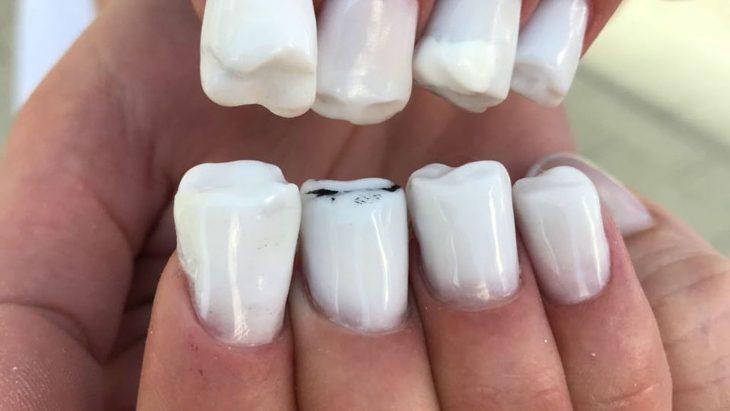 mano con uñas en forma de dientes