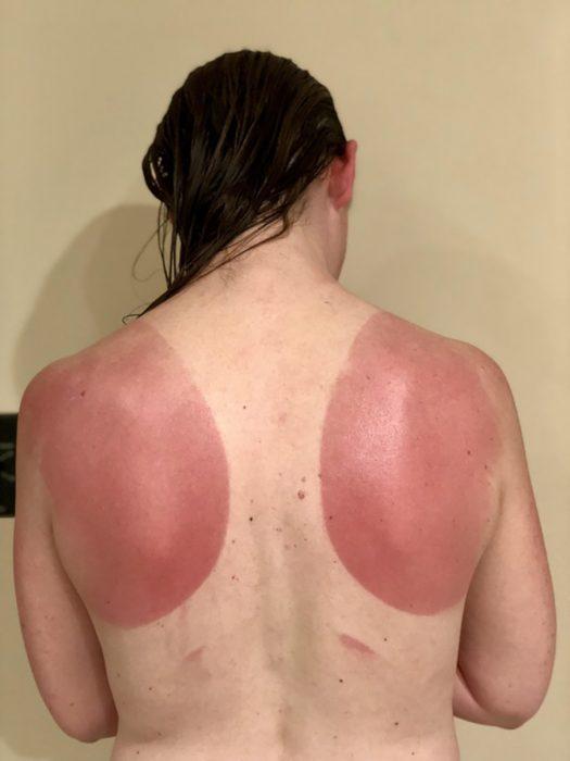 mujer con quemaduras solares en la espalda
