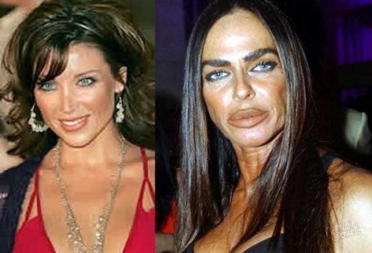 famosas arruinaron cara con cirugía