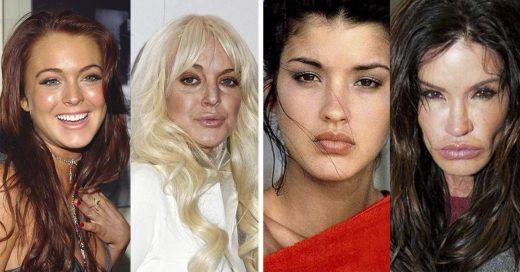 Cover Famosas que destruyeron su rostro por culpa de las cirugías plásticas