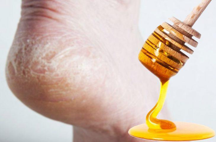 talones agrietados y miel