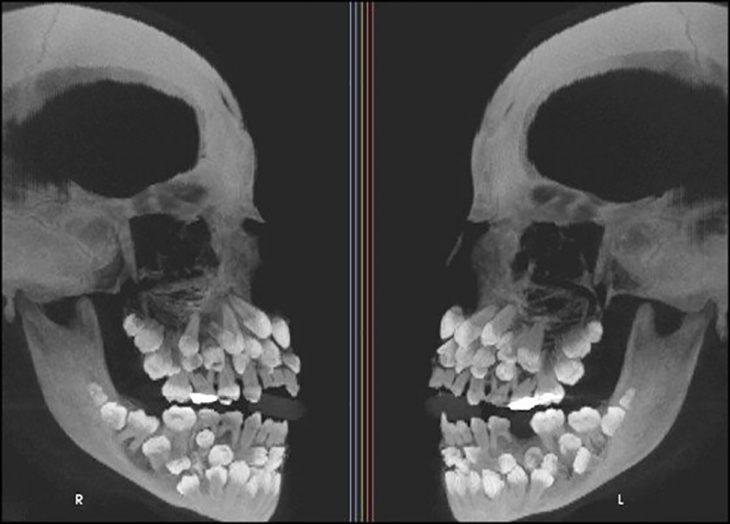 rayos x de hiperdoncia