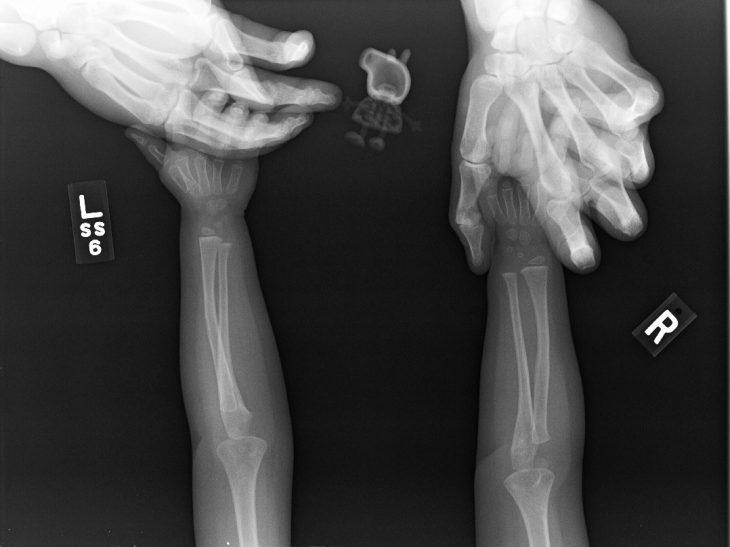rayos x de pepa pig