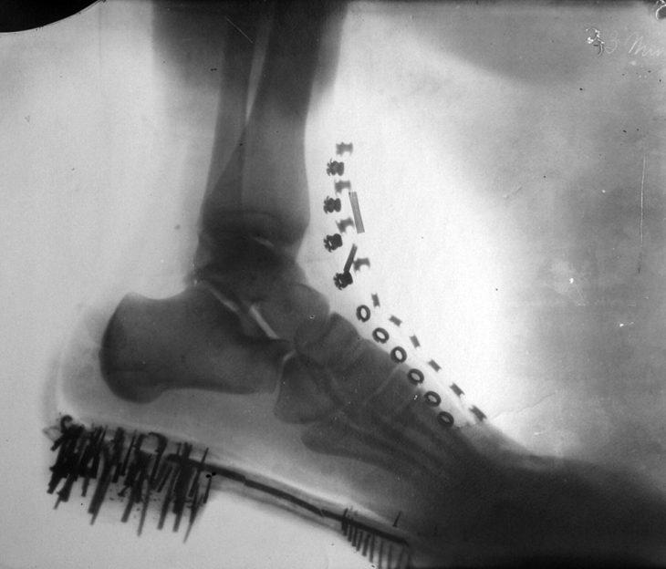 1896 Nikola Tesla le tomó rayos X a su propio pie en una bota
