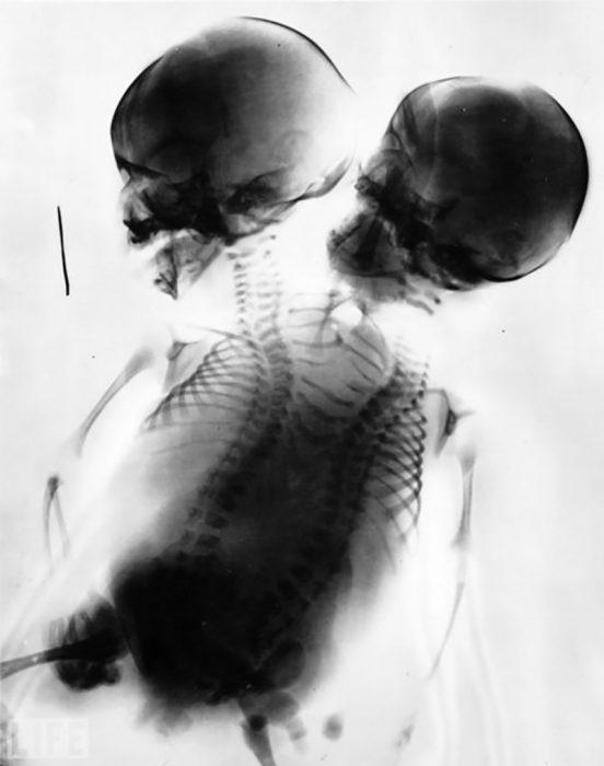 rayos x de Gemelos siameses