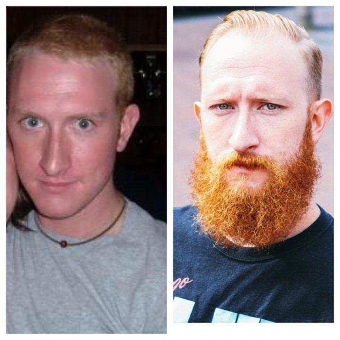 barba pelirroja