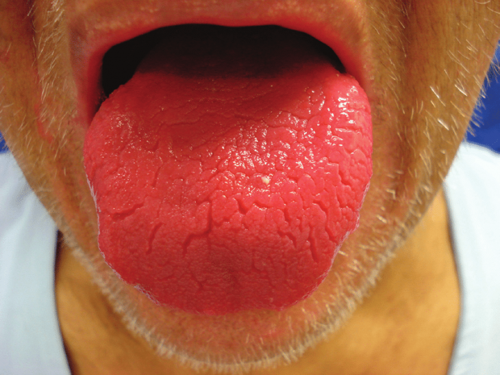 lengua rojo brillante