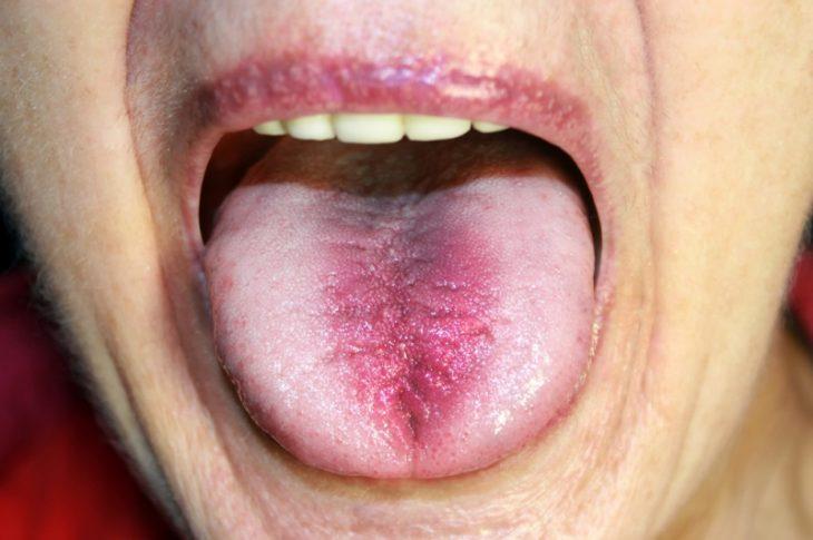 lengua morada