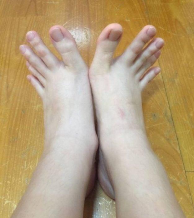 partes anormales del cuerpo