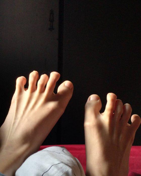 partes del cuerpo anormales