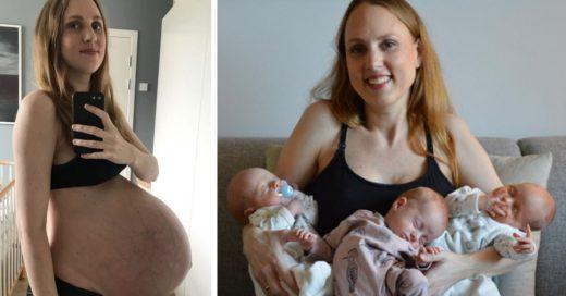 Cover Mujer da a luz a trillizos y muestra su vientre después de dar a luz
