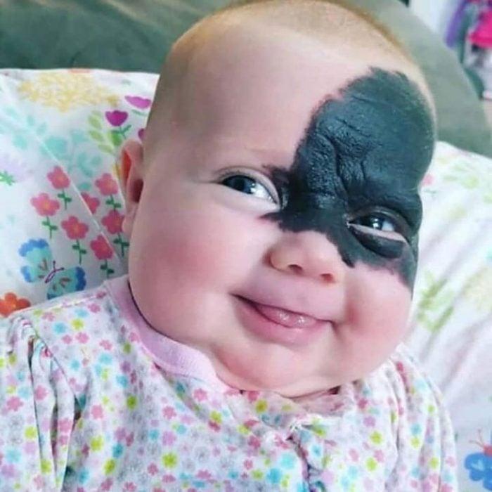 bebé con marca de nacimiento