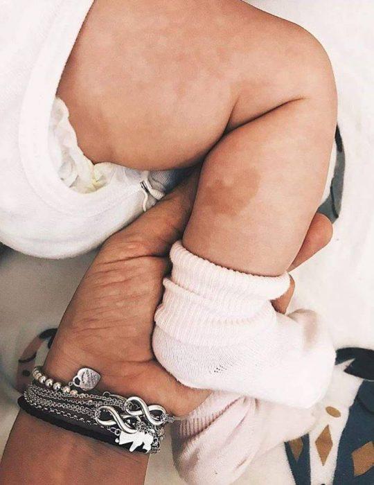 marca de nacimiento en una piernita de bebé