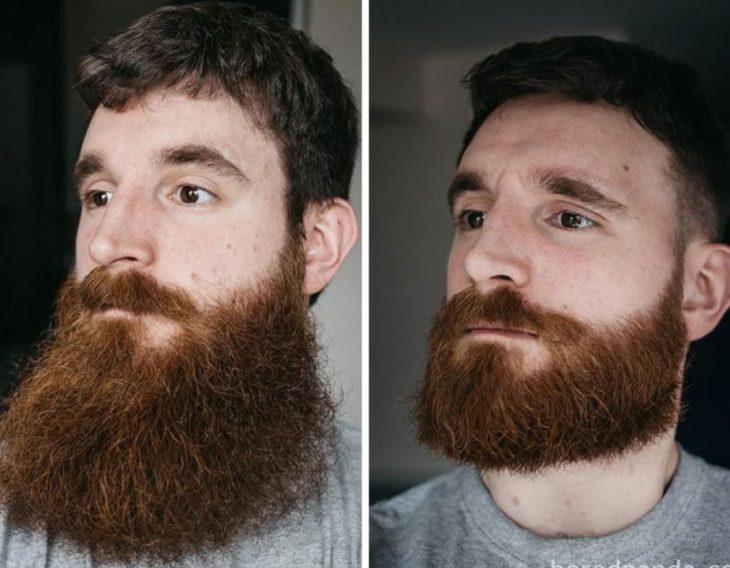 barba prolija