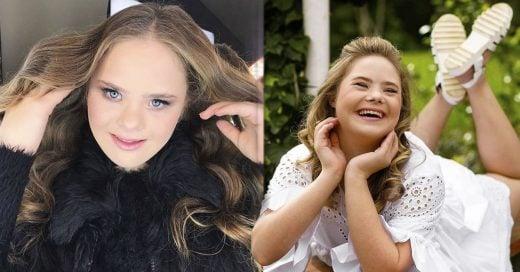 Cover Adolescente con síndrome de Down se convierte en modelo gracias a sus fotos de Facebook