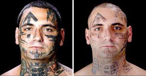 25 CIRUGÍAS después: antiguo líder de la Supremacía Blanca se libera de sus tatuajes de odio
