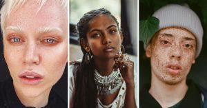 17 Personas extraordinarias que se destacan por su belleza peculiar