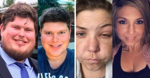 15 Fotos de antes y después de dejar la adicción al alcohol