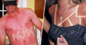 20 Personas que sufren las consecuencias de no conocer el bloqueador solar